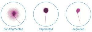 SpermDFIDNAFragmentation
