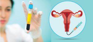 PRPforInfertility